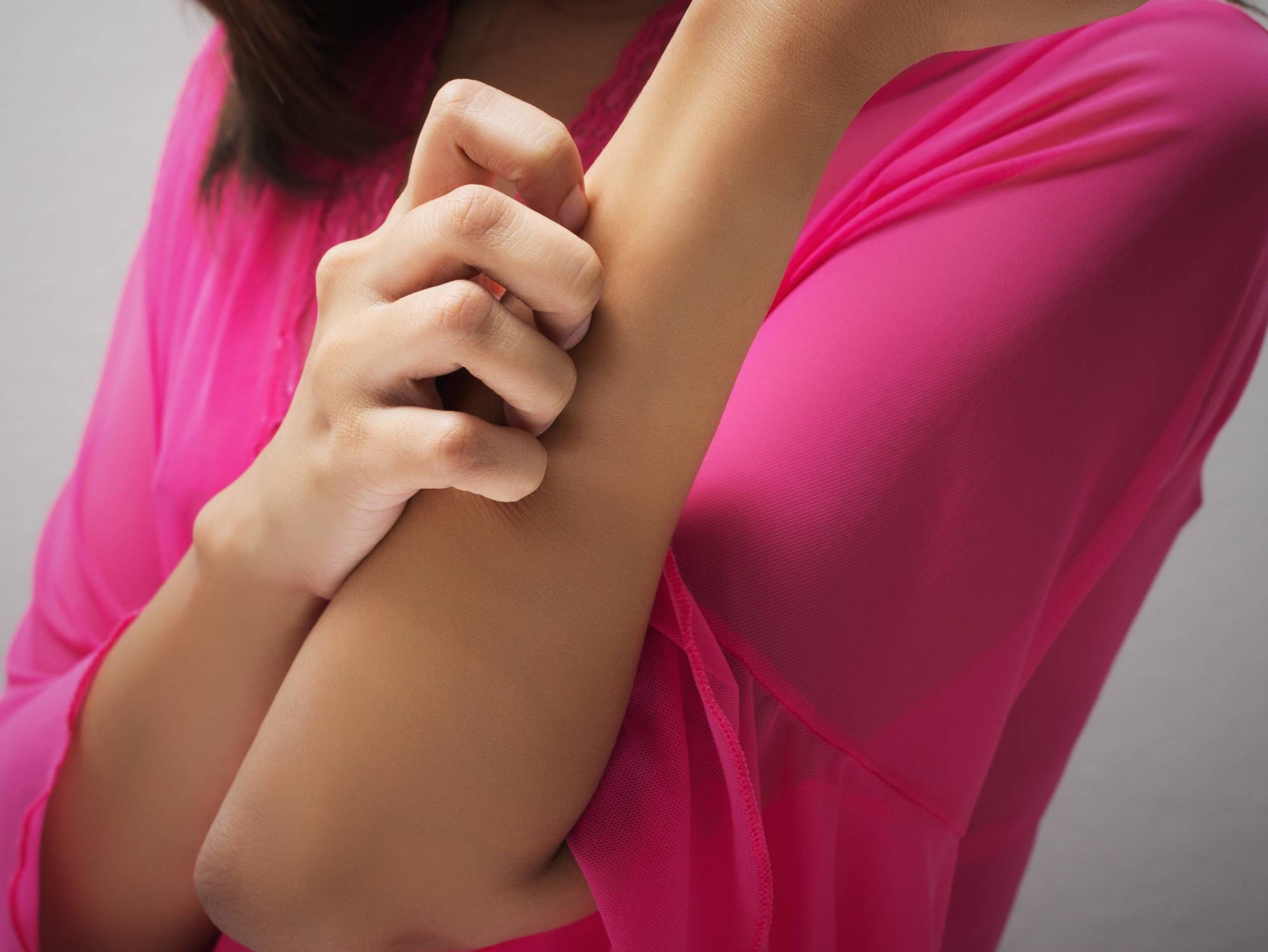 У девушки чешется рука от укуса мошки